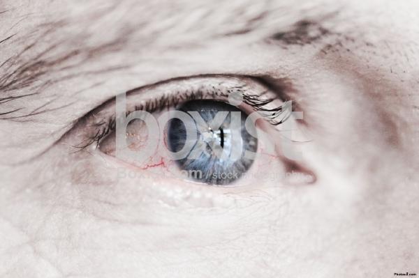 Tired Red Blue Eye